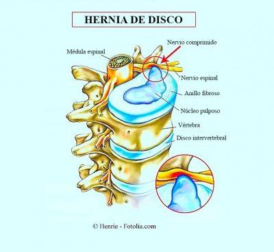 hernia de disco, lumbar