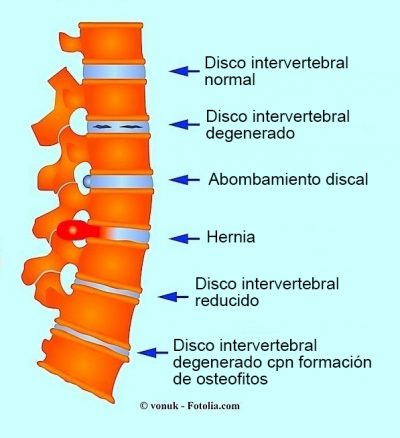 hernia, protrusión , artrosis, huesos adicionales, espalda