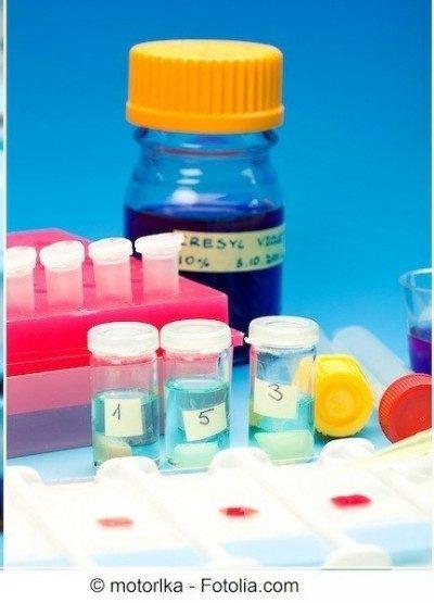glucemia alta, exámenes de sangre