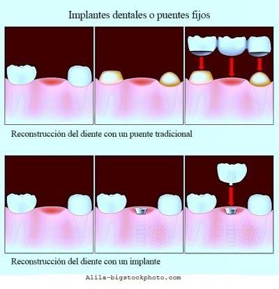 Granuloma dental, implante, puente