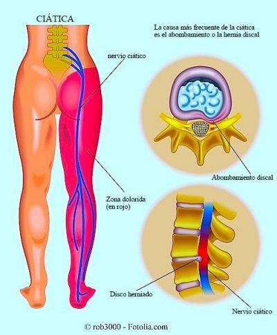 inflamación del nervio ciático, ciática, hernia, dolor, pierna