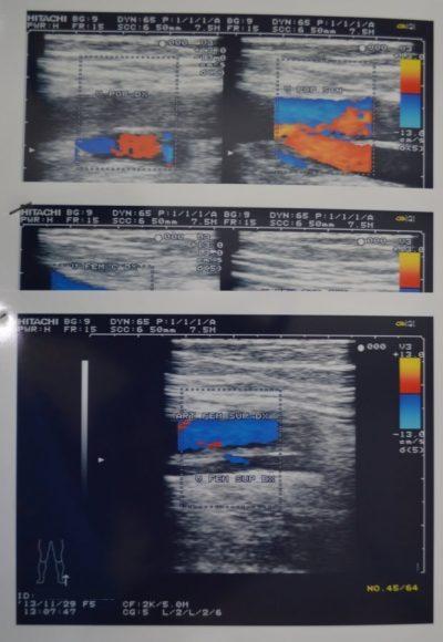 Ultrasonido-Doppler-con-trombosis-venosa-profunda