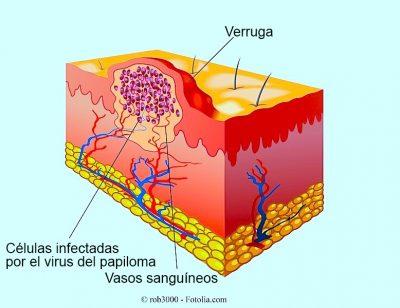 virus del papiloma, verrugas, genitales
