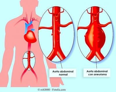Circulación, arteria, aorta