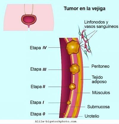 tumor de vejiga, cáncer