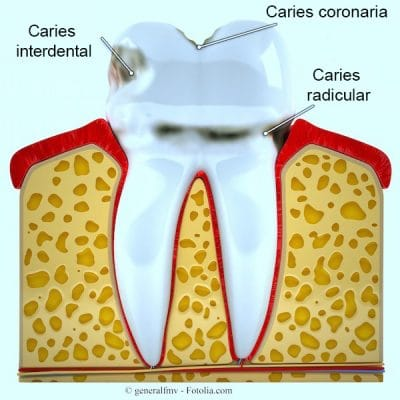 Caries, dientes, tipos, radicular, coronal, interdental