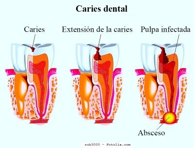 Absceso dental, diente, caries