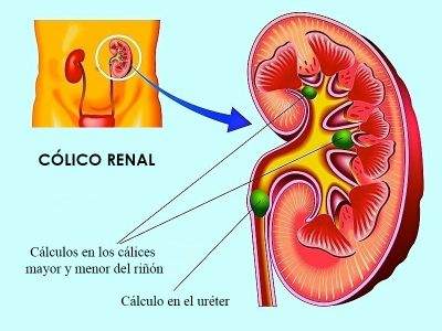 cólico renal