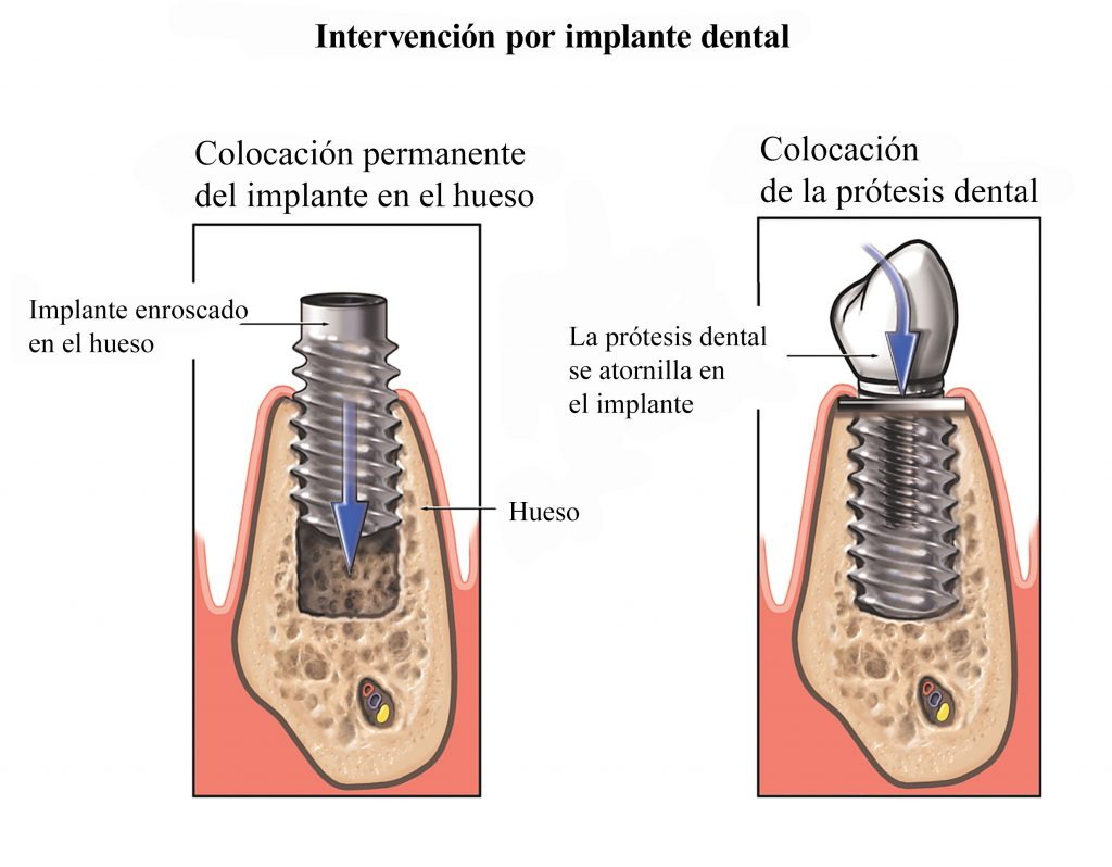 dientes-implante-dental