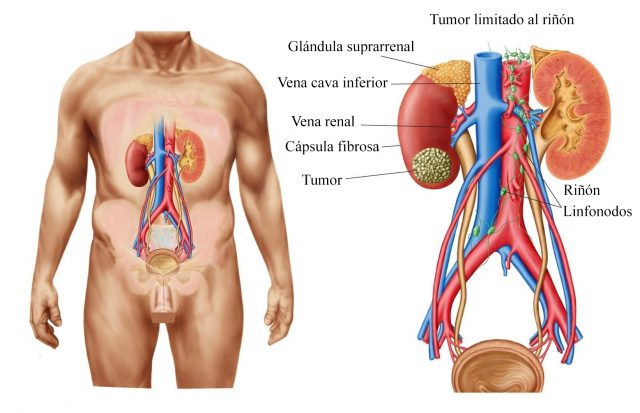 Analgésicos, riñones