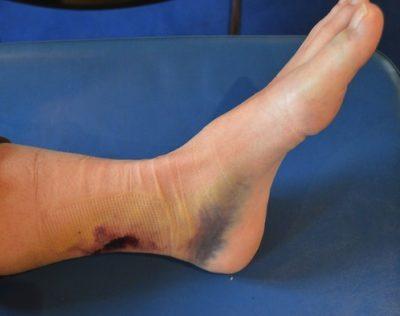 La várice varicosa en un pie