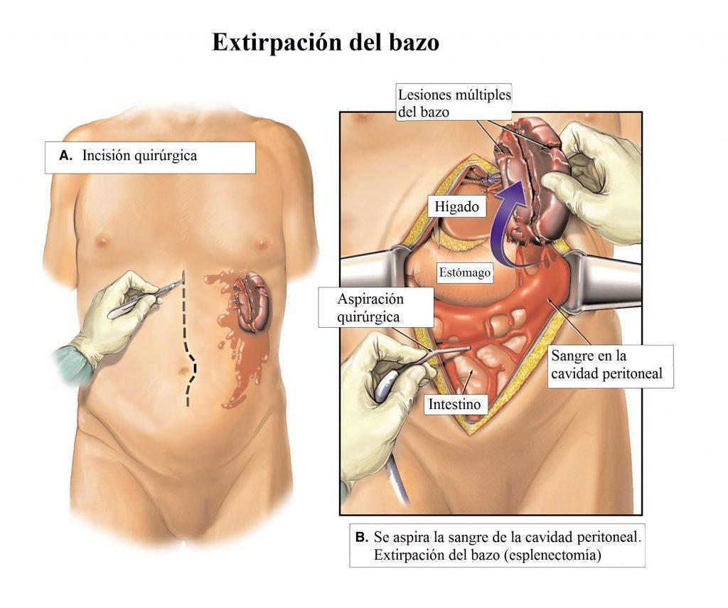 extirpación-bazo