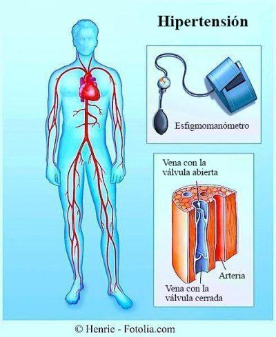 Hipertensión arterial, medición