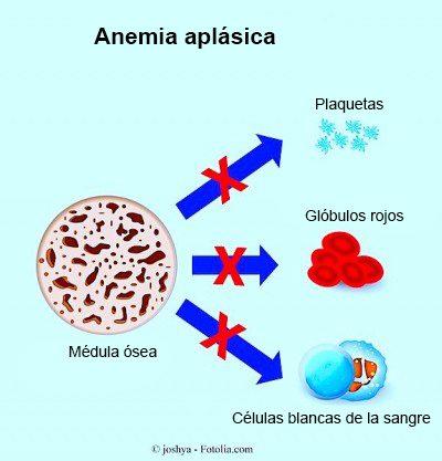 plaquetas-bajas-o-trombocitopenia
