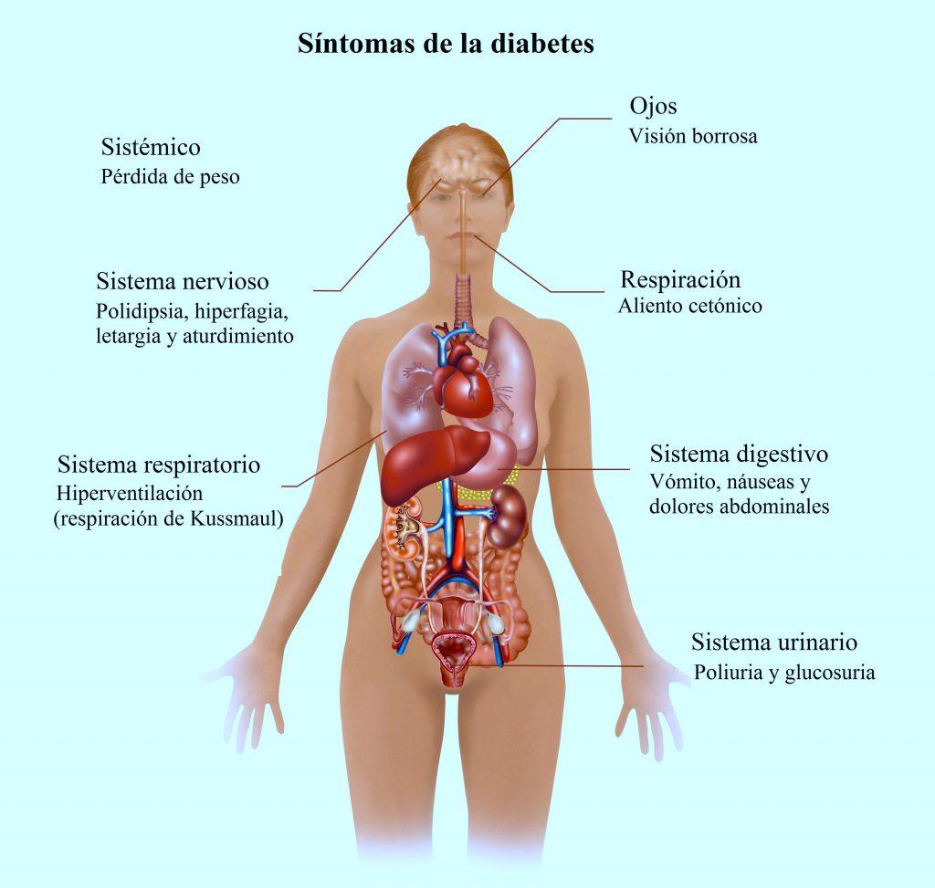 síntomas-de-la-diabetes