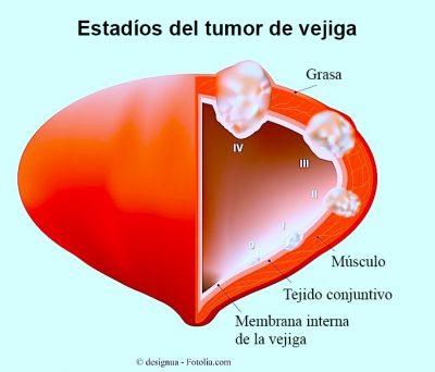 etapas-tumor-vejiga-linfonodo-centinela