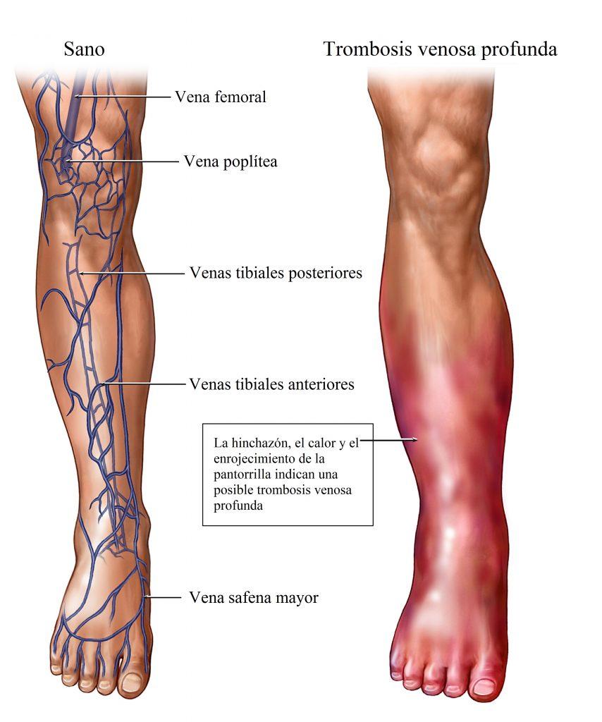 trombosis-venosa-profunda-flebitis