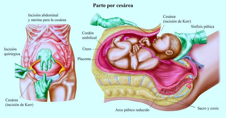 parto por cesarea