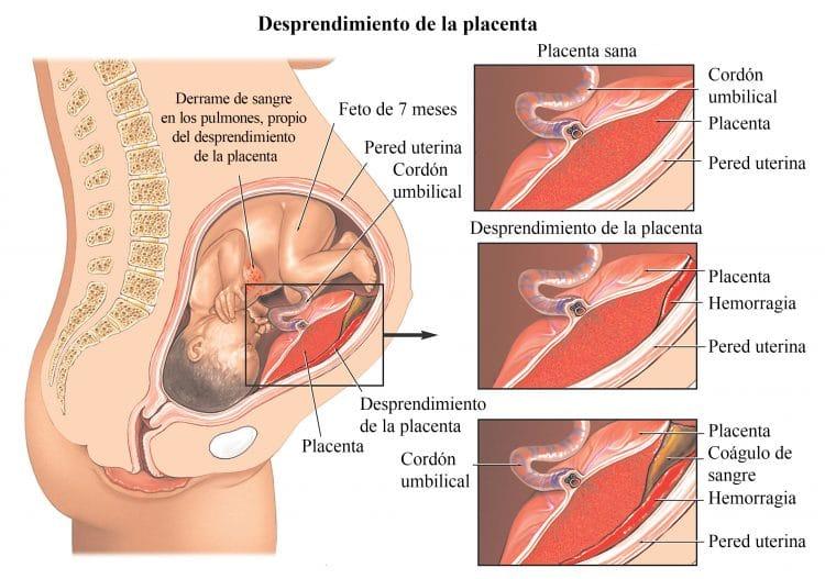 desprendimiento de la placenta