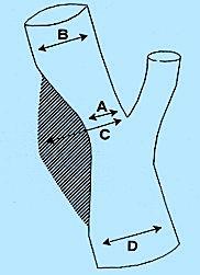 Método de medición del porcentaje de obstrucción