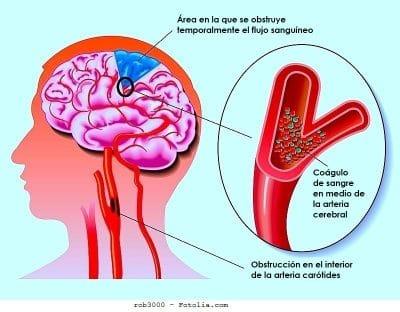 estenosis, arteria carótida, arteria