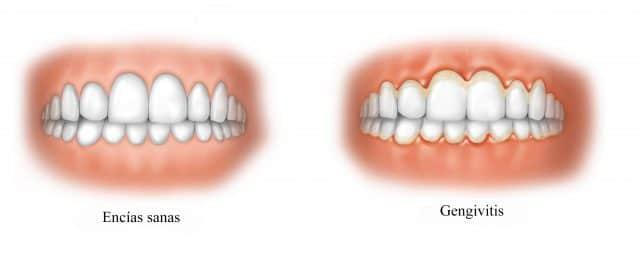 Encias sanas, gingivitis