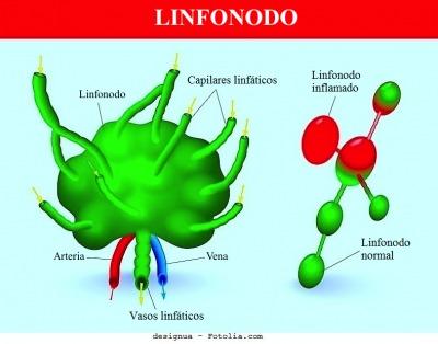 Enfisema pulmonar - tratamento e expectativa de vida