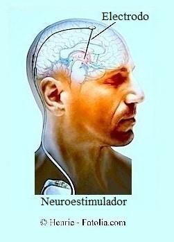 estimulador cerebral profundo