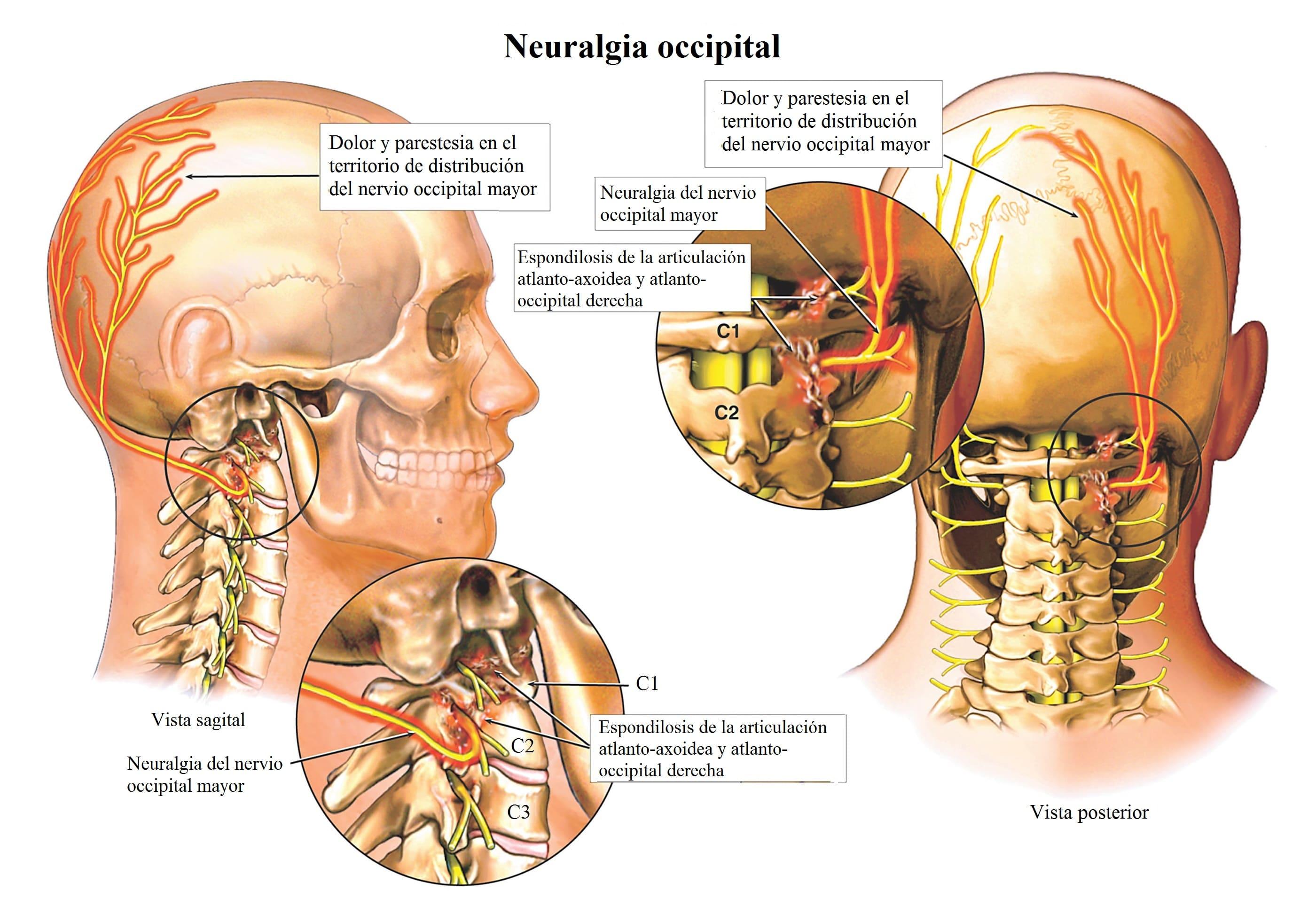 dolor cervical y vertigos