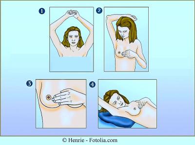 autoexploración mamaria, posiciones, brazo, seno, acostada
