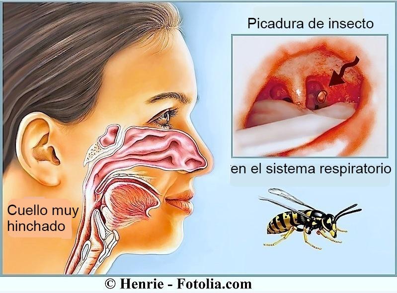Picadura de abeja o avispa - síntomas y remedios naturales, avispa ...