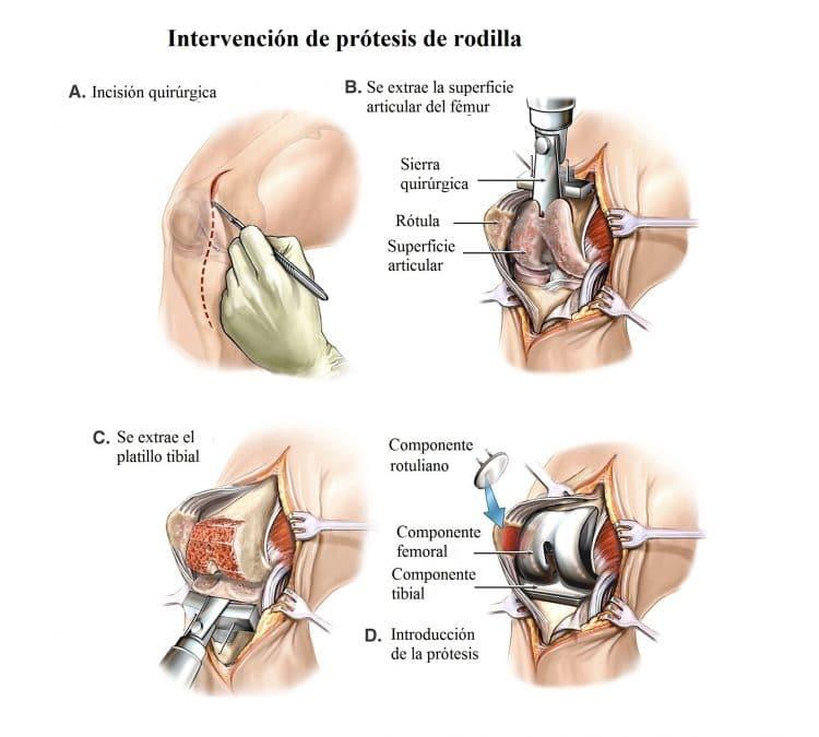 intervencion de protesis de rodilla