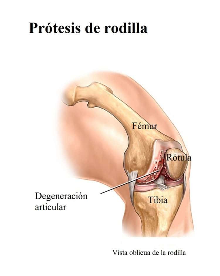 prótesis de la rodilla, cirugía
