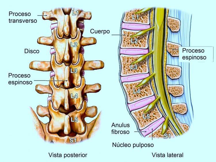 Protrusión y abombamiento discal - Fisioterapia para todos