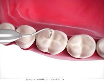 Encías, remedios, dentista