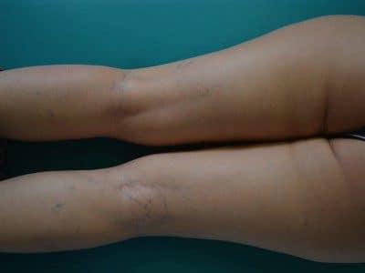 rotura de los capilares, venas, piernas