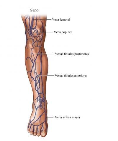 rotura de capilares en las piernas