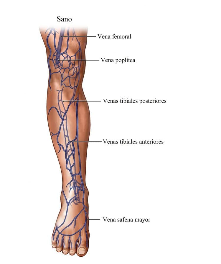 Vasos sanguíneos reventados en las piernas, causas y ¿cómo quitar ...
