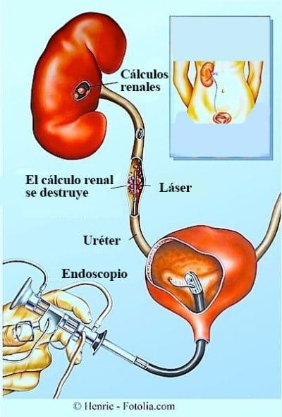Ureteroscopia