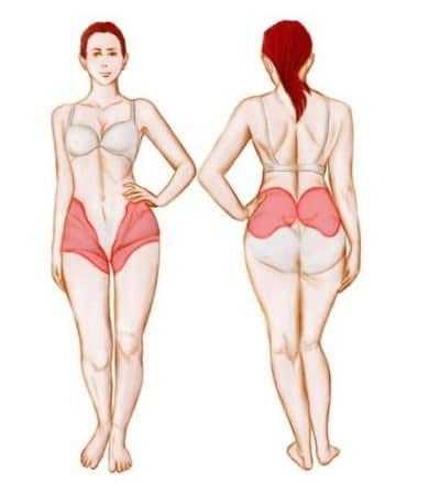 cálculos renales, dolor, dolor de estómago