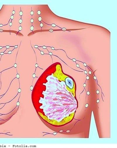 Cáncer de mama, carcinoma, mama