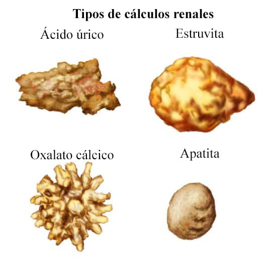 Tipos de calculos renales