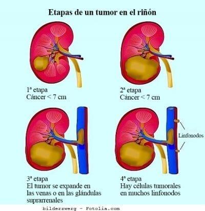 tumor de riñón, estadio, cuarto, IV