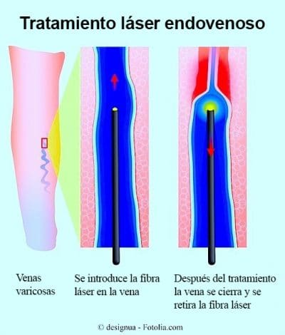 Tratamiento laser endovenoso