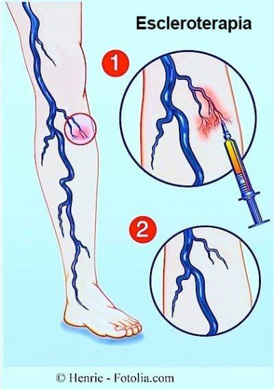 escleroterapia, venas varicosas