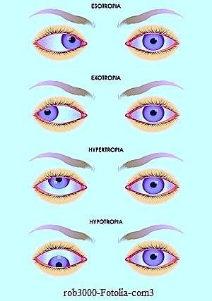 Estrabismo, convergente, divergente, esotropía, exotropía ,hipertropia, hipotropia