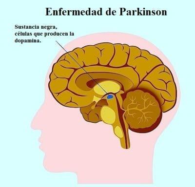 enfermedad de Parkinson, sustancia negra, cerebro, movimiento