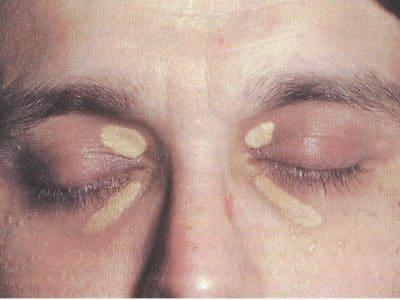 Xantelasma, Foto: xantelasma, acumulación de grasa, ojo