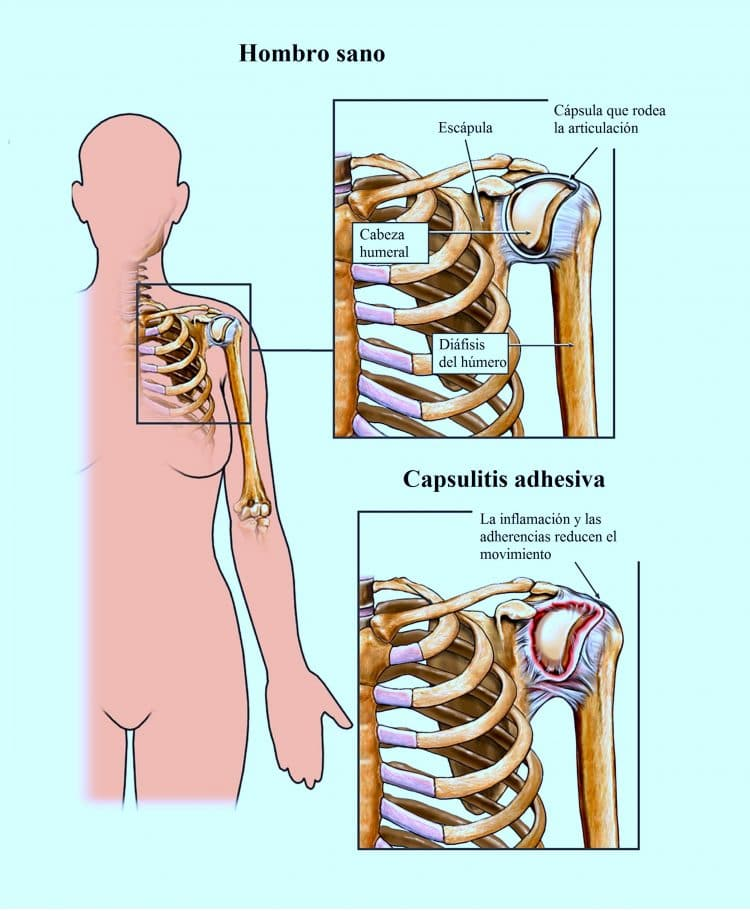 hombro sano, capsulitis adhesiva