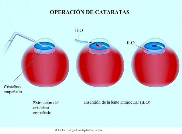 Operación, cataratas, ojos, cristalino, opacidad